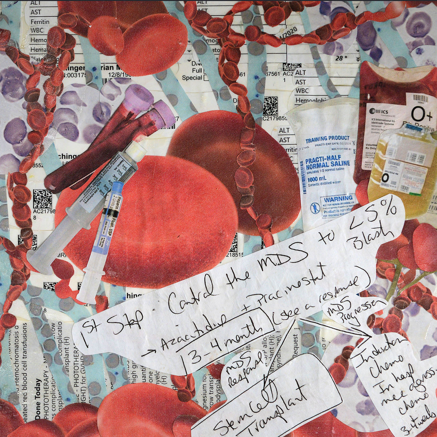 MARIAN EICHINGER, ACCEPTING REALITY AND OVERWHELMED BY THE COMPLEXITY: This is a hand-cut collage of images that dominated my life after my diagnosis of MDS in May 2018. The collage turned into a visual of what my general daily or weekly routine looked like: labs, blood draws, fluids, doctor notes, transfusions, infusions, white blood cells, blasts, red blood cells, and platelets. The pictures overlap and interrupt each other, becoming the tangle of complexity that is MDS.